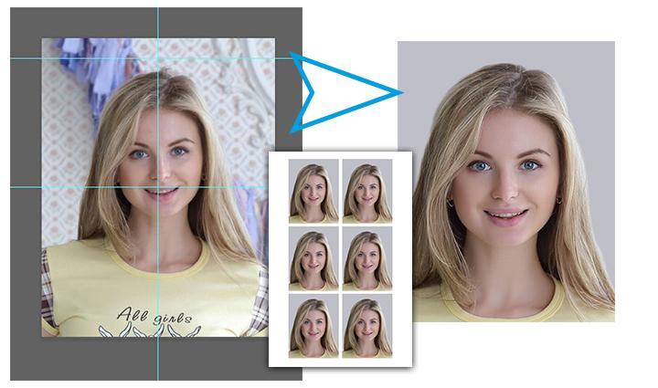 Уздечка у ребенка между передними зубами фото до и после